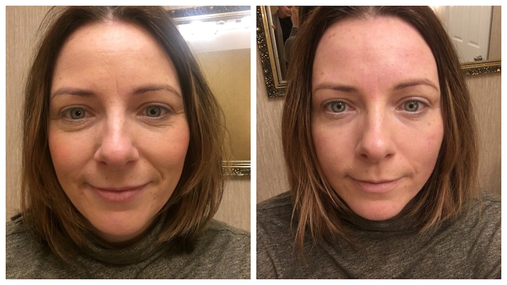 before and after shots of woman's face